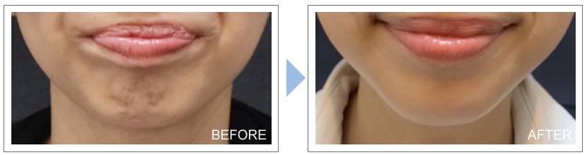 症例写真アラガン社のボツリヌス注射 あごへの注入