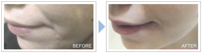症例写真アラガン社のボツリヌス注射 口元への注入